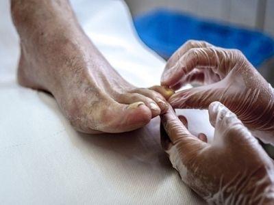 Diabetic, Geriatric, and General Foot careimg