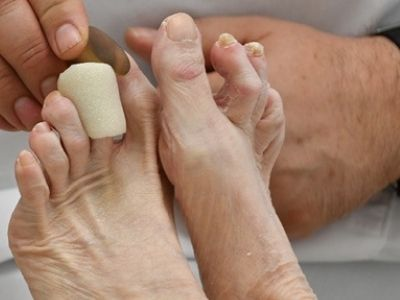 Foot & Ankle Surgeryimg